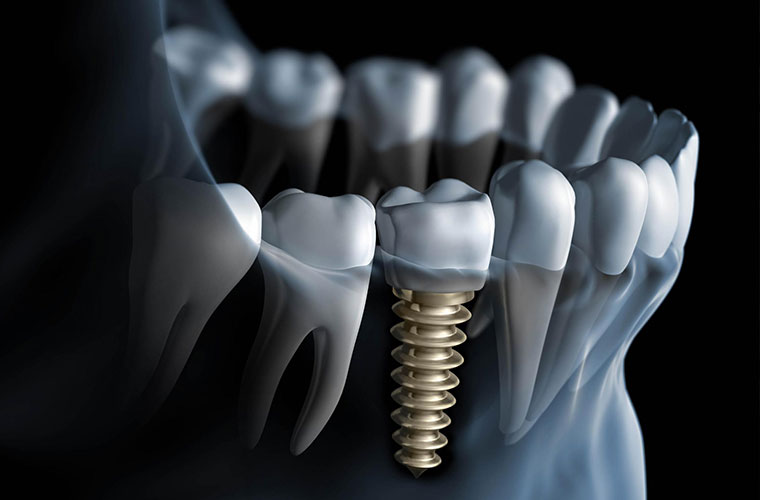 Dental Implants in Rochester NY