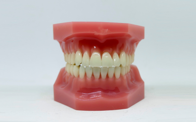 Tooth Replacement Rochester NY Offers Dental Implants for Missing Teeth