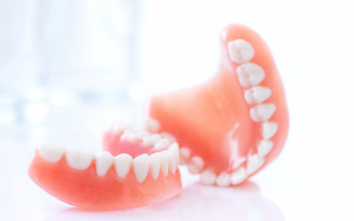 Can I Change From Dentures To Dental Implants?